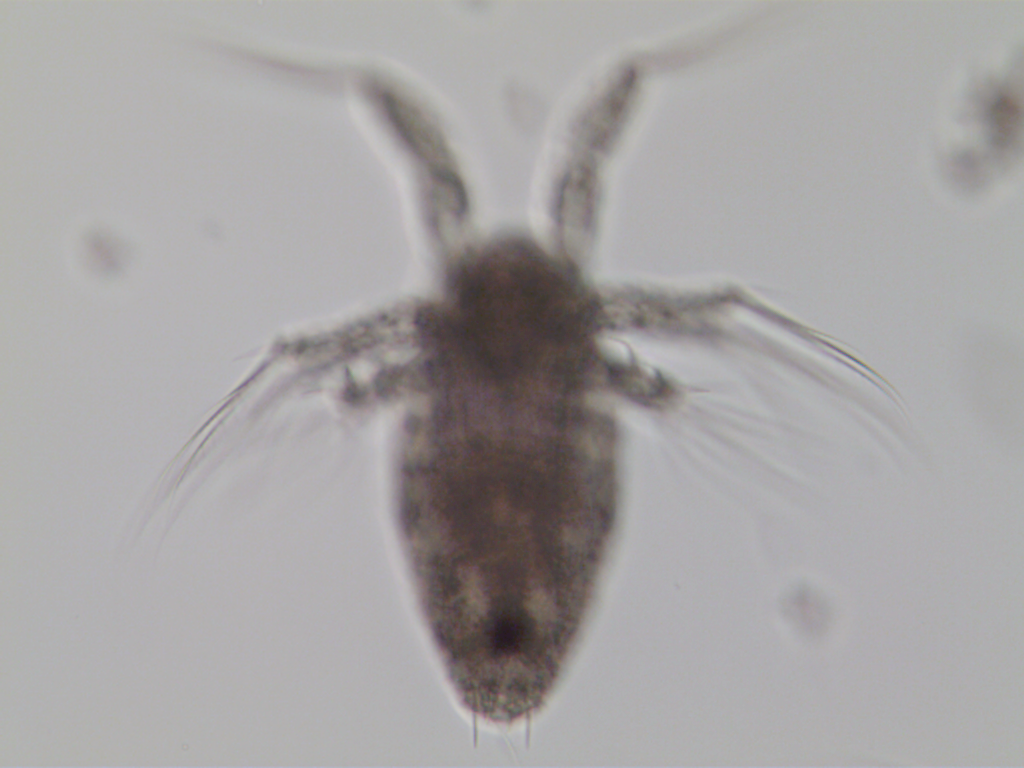 Acartia nauplius spines.